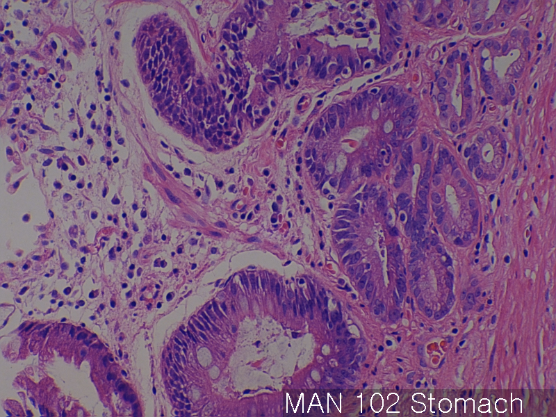 Normal Matching Tissues Of Ma Xelonet